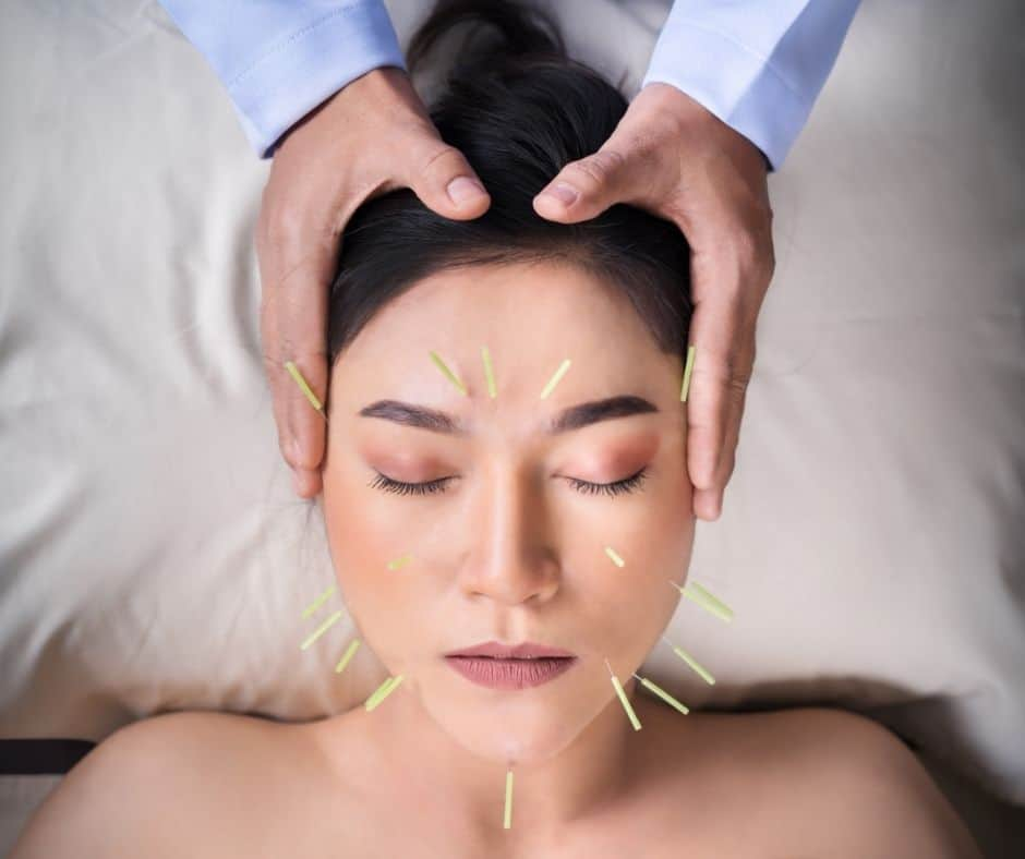 Women's Face with Acupuncture Needles